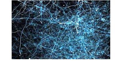 传感器在城市神经网络中扮演什么角色