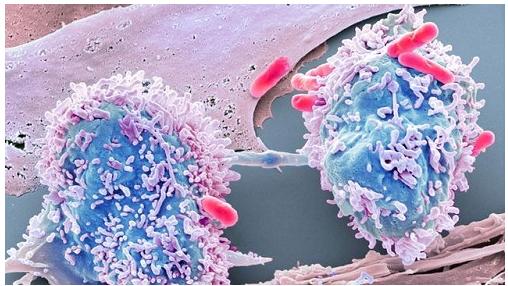 如何利用大数据技术可以打败癌