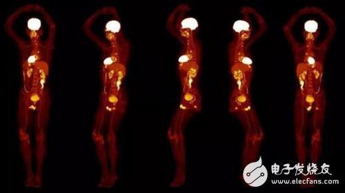 20秒完成全身3D扫描的医学成像设备