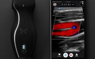 iPhone手机搭配手持设备就能检测癌症