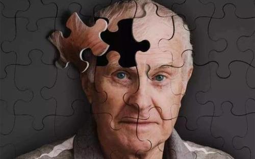 人工智能应用阿尔茨海默症检测,全球共话A.I.+...