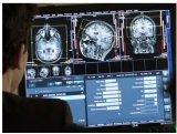 什么样的UI设计才真正能帮助用户更安全、有效率地使用医疗设备?
