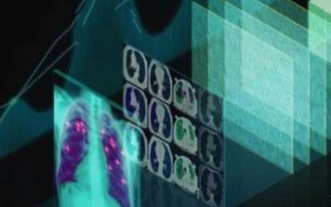 深度学习会是医疗行业的未来吗