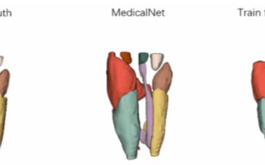 騰訊醫療AI開源模型讓3D醫療應用性能提升