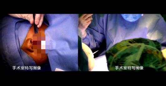 山东电信助力千佛山医院完成了微笑一生唇腭裂5G手术多点直播