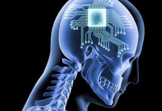 腦機接口系統人體植入
