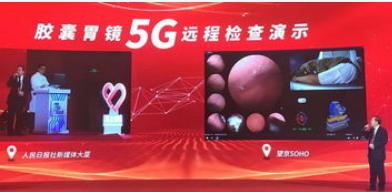 北京移动正式展示了磁控胶囊胃镜5G远程操控演示