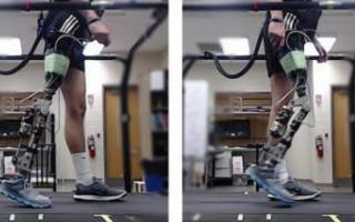 研究员利用VR技术帮助截肢患者装备假肢