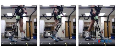 一种旨在帮助患者和临床医生更轻松装配假肢的全新技术