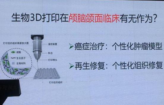 3D打印技术让医疗产业进入个性定制时代