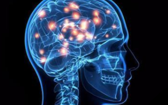 一种基于人工智能的脑图像处理方法