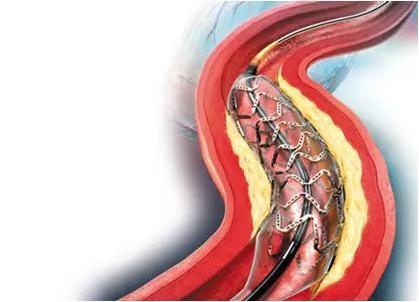 美国科学家创造了3D打印心脏支架的新技术