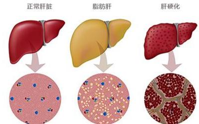MRI技术可量化非酒精性脂肪性肝炎患者的肝脏反应