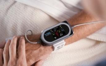 可穿戴医疗设备会改变人类的生活方式吗