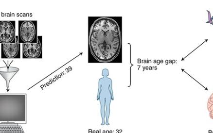 人工智能帮助你延缓大脑老化