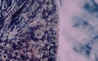 机器学习模型在医疗行业的应用可以更好的识别肺癌