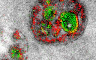 医疗电子显微镜首次出现了绚丽多彩的细胞图像
