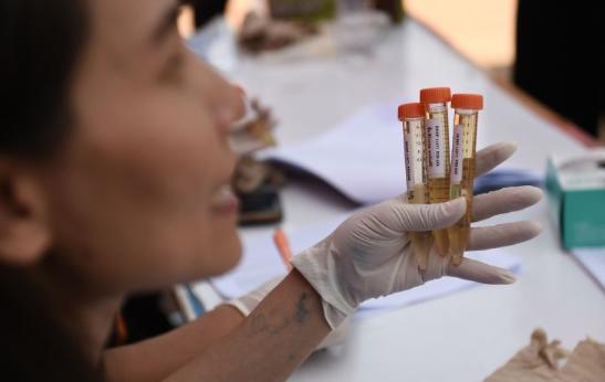 以芯片为基础的光学传感器可侦测出尿液中癌症生物标记的雷射感测装置