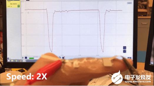 多伦多大学推出人工智能离子皮肤 可以记录人类皮肤...