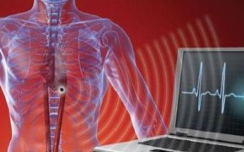 通过采用超低功率RF收发器芯片设计植入式医疗设备的通信系统