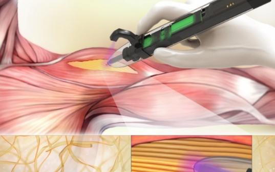 手持式3D打印机原型生产生物支架植入肌肉