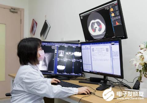 天翼云联合上海联影 AI智能阅片系统为一线医护人员节省了时间