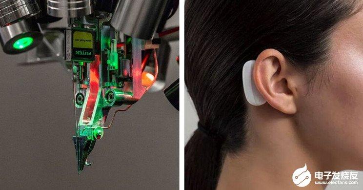 马斯克的脑机接口有望今年进行人体测试 目标是实现脑机融合