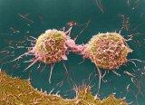 个性化和机器学习如何提高癌症外展投资回报率