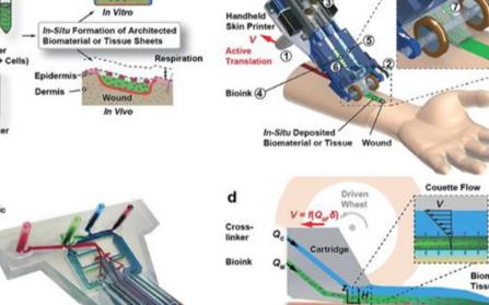 利用3D打印亚洲啪啪修复深度伤口只需要2分钟