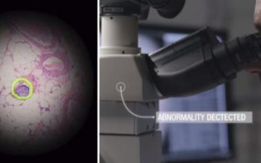 谷歌推出AR显微镜,可以迅速的发现癌细胞