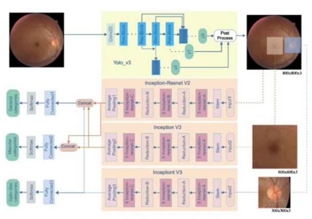 人工智能能否查出视网膜病变