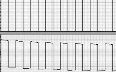 一種基于電荷泵改進型CMOS的模擬開關電路
