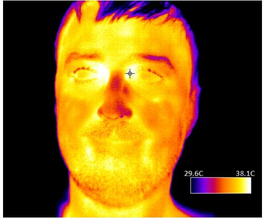 Teledyne DALSA最新的热感相机为无接触发体温烧筛查提供最佳选择