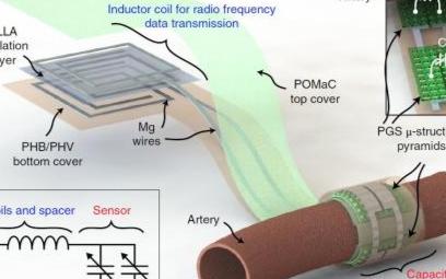 斯坦福大学研发血流传感器,无需手术摘除