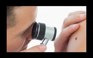 AI可以帮助皮肤科医生更准确地诊断许多皮肤疾病和...