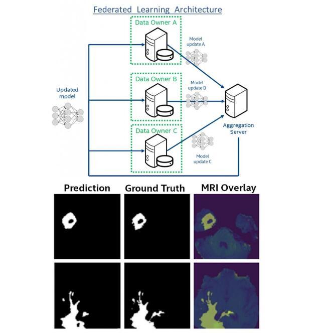 医学院正在研究一个人工智能,可以帮助识别脑瘤