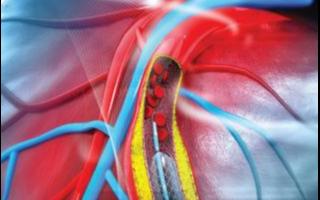 """使用计算建模和机器学习方法来预测心脏""""从原子到心律""""的电毒性"""
