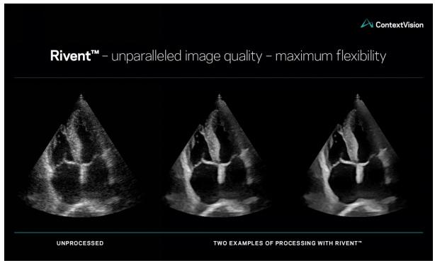 康泰瑞影重新定義超聲圖像增強功能