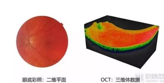 20万次每※秒扫频激光OCT发布,国产设备将在眼科领域后来居上