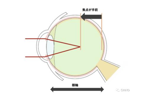 �D田Vision Ink研发通过人造光调节眼轴距的可穿戴近视眼镜