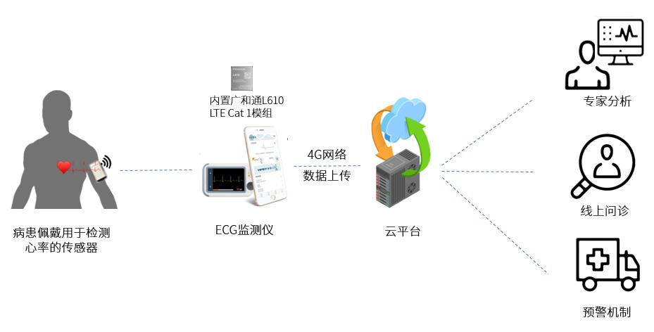 广和通ECG远程监测Cat 1无线联网的解决方案