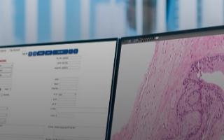 用于NHS患者癌癥檢測的首個臨床級AI應用