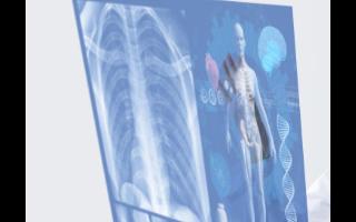 大橡科技推出三款商用器官芯片產品 第三方試驗數據可觀