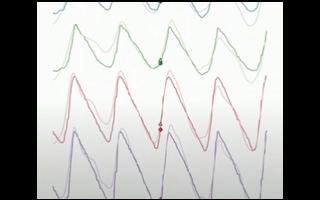 腦機接口創企Neuralink搞大事 馬斯克用活豬演示腦機技術
