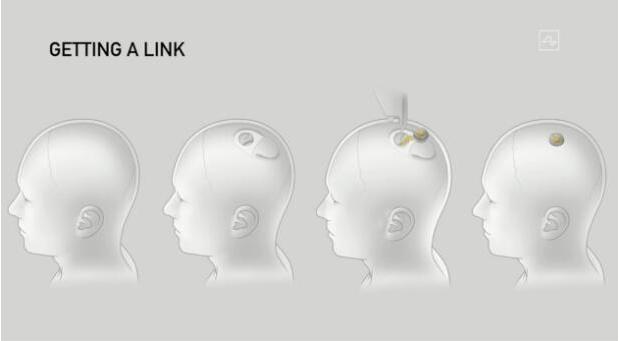 馬斯克演示最新腦機接口技術,未來計劃第一步是治病