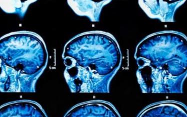 AI如何改變醫療保健的三個示例