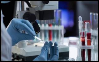 开发一种芯片实验室套件来测量人体血液中的这六种蛋白质
