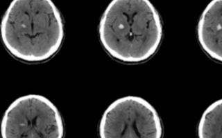 RapidAI是一家使用AI開發腦血管成像產品的...