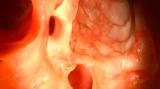 使用AI帮助进行高质量的结肠镜检查