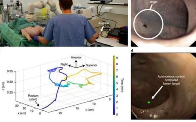 英科学家发明结肠镜检查机器人,可在实时视觉分析下自主运动